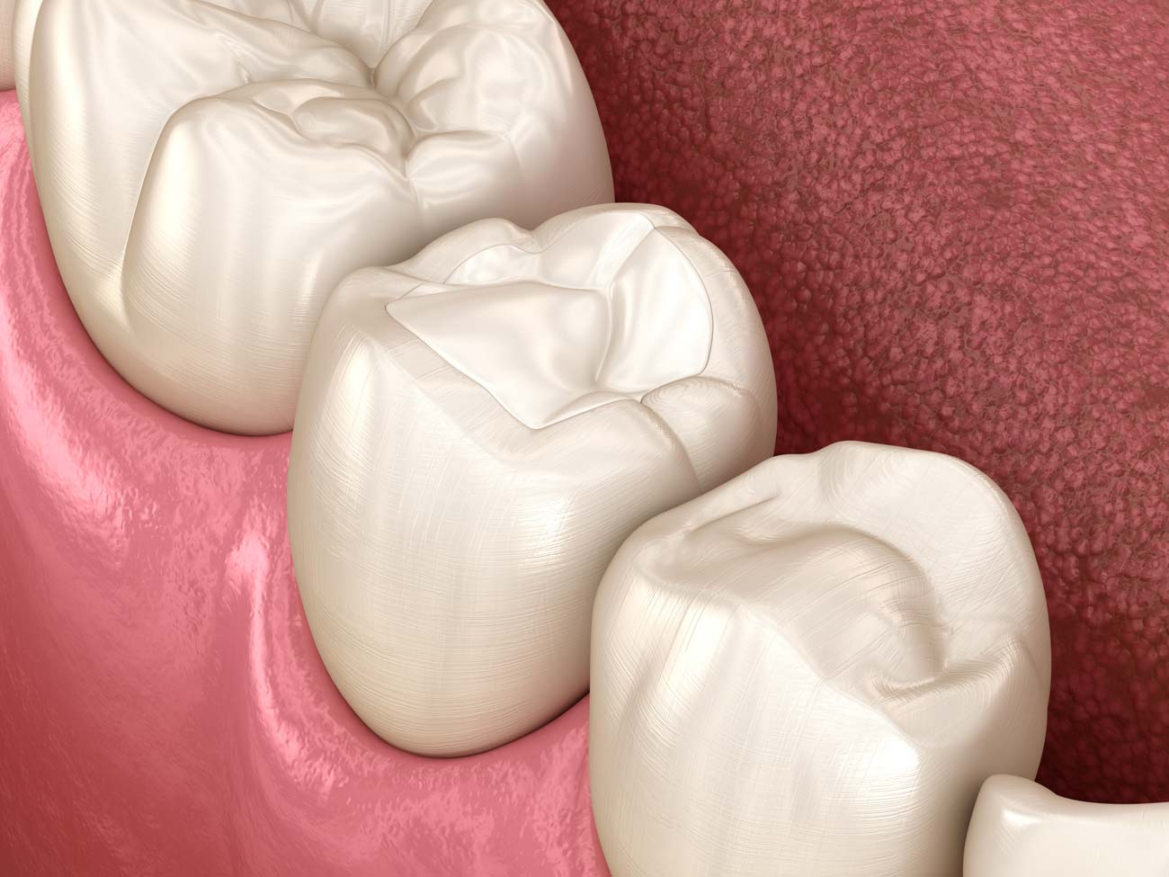 Composite Resin (Tooth colored) Fillings